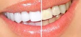 Лазерное отбеливание зубов ради голливудской улыбки