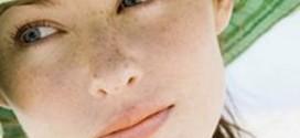 Как бороться с пигментными пятнами на лице