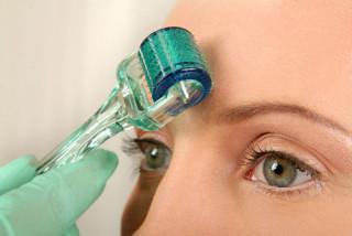 mezoroller-panaceya-v-sovremennoj-kosmetologii