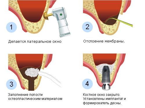 Базальная имплантация зуба