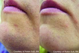 депиляция усов
