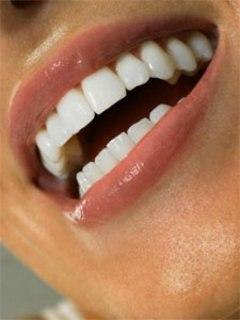 Как сделать зубы белыми – советы для всех