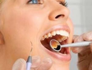 kogda-protezirovanie-zubov-neobxodimost