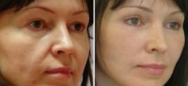 Как происходит круговая подтяжка лица?