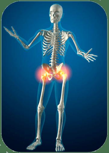 Магнито-резонансная тамограмма суставов