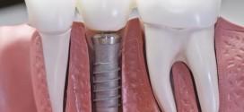 Все что вы хотели знать про имплантацию и протезирование зубов